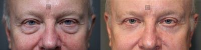 Laser Resurfacing Gallery - Patient 37510738 - Image 1