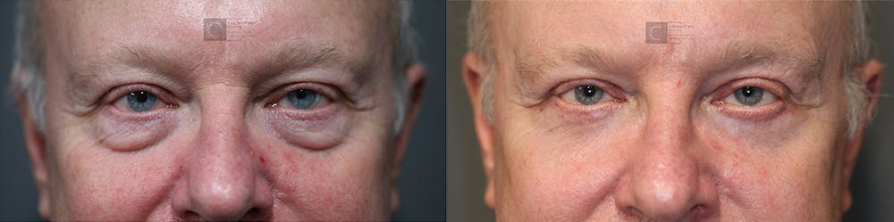 EnigmaLift - Eye Bag Removal Gallery - Patient 37510739 - Image 1