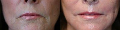Lip Lift Gallery - Patient 41308453 - Image 1
