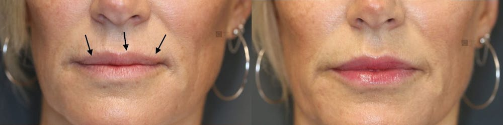 Micro-Structural Lip Augmentation Gallery - Patient 41308492 - Image 1