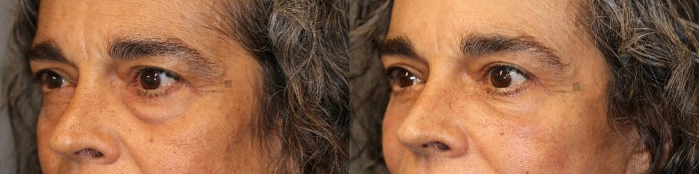 EnigmaLift - Upper Eyelids Gallery - Patient 41308575 - Image 2