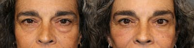EnigmaLift - Eye Bag Removal Gallery - Patient 41308626 - Image 1