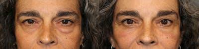 Regenerative Medicine Gallery - Patient 41308637 - Image 1
