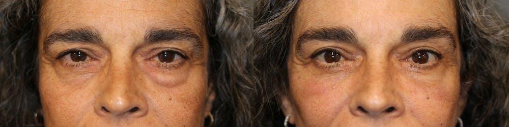 Facial Fat Transfer Gallery - Patient 41308638 - Image 1