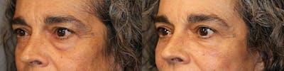Facial Fat Transfer Gallery - Patient 41308638 - Image 2