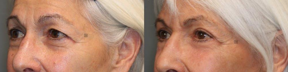 EnigmaLift - Upper Eyelids Gallery - Patient 41308672 - Image 2
