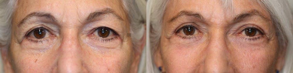 EnigmaLift - Upper Eyelids Gallery - Patient 41308672 - Image 3