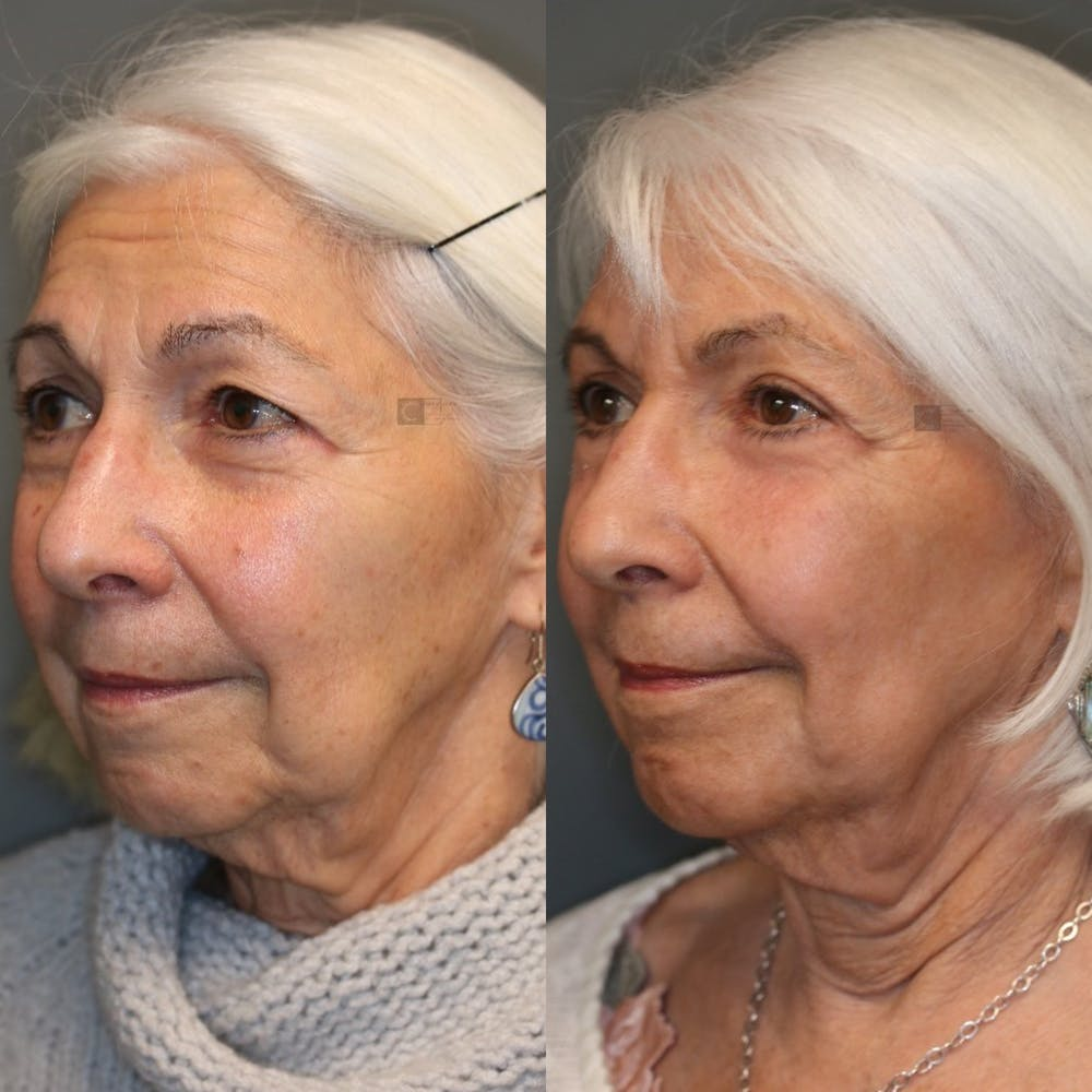 EnigmaLift - Eye Bag Removal Gallery - Patient 41308680 - Image 1