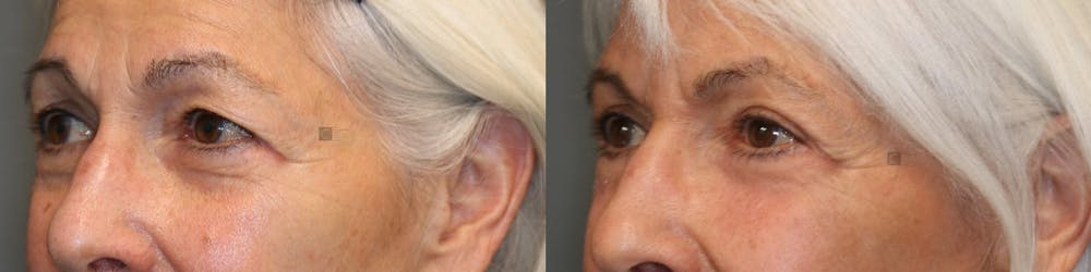 EnigmaLift - Eye Bag Removal Gallery - Patient 41308680 - Image 2