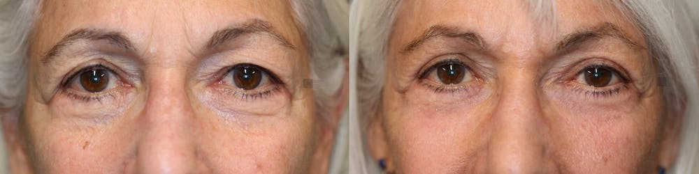 EnigmaLift - Eye Bag Removal Gallery - Patient 41308680 - Image 3