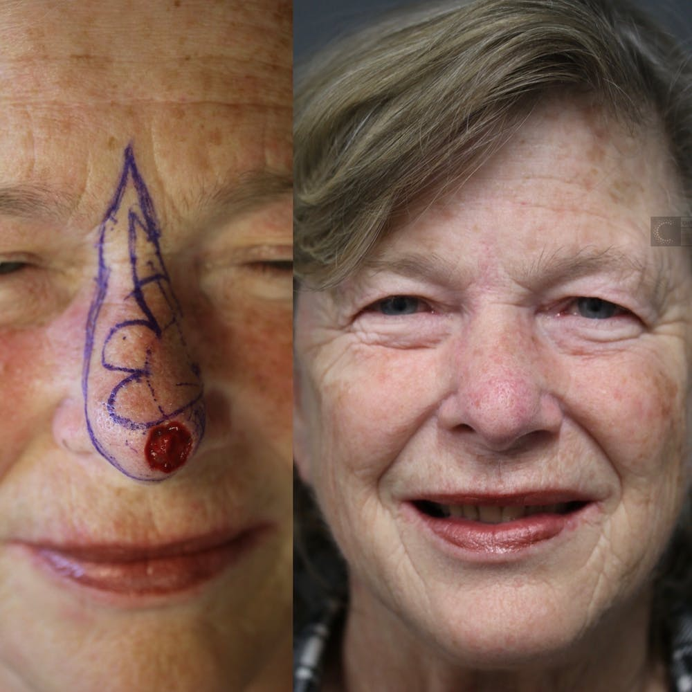 MOHS Gallery - Patient 41308726 - Image 1