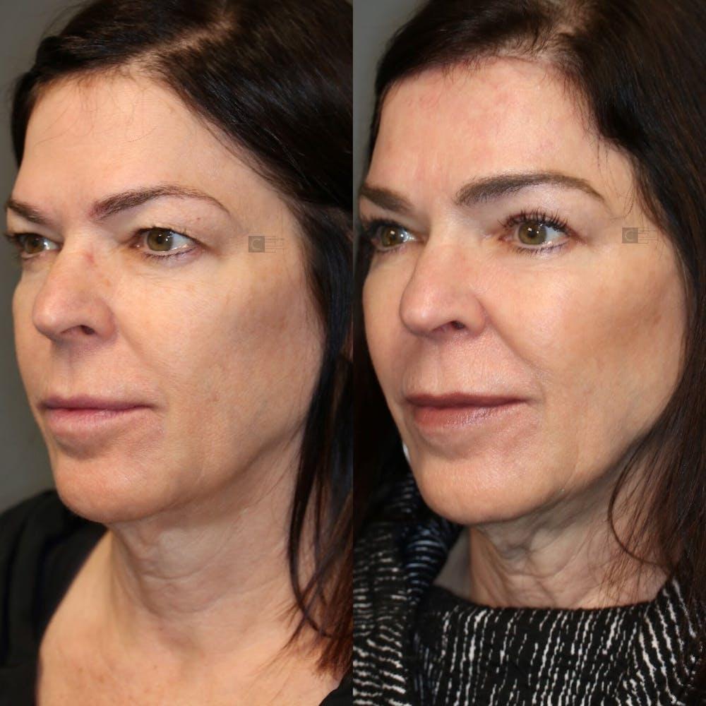 Laser Resurfacing Gallery - Patient 41308737 - Image 1