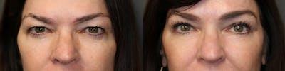 EnigmaLift - Upper Eyelids Gallery - Patient 41308767 - Image 2