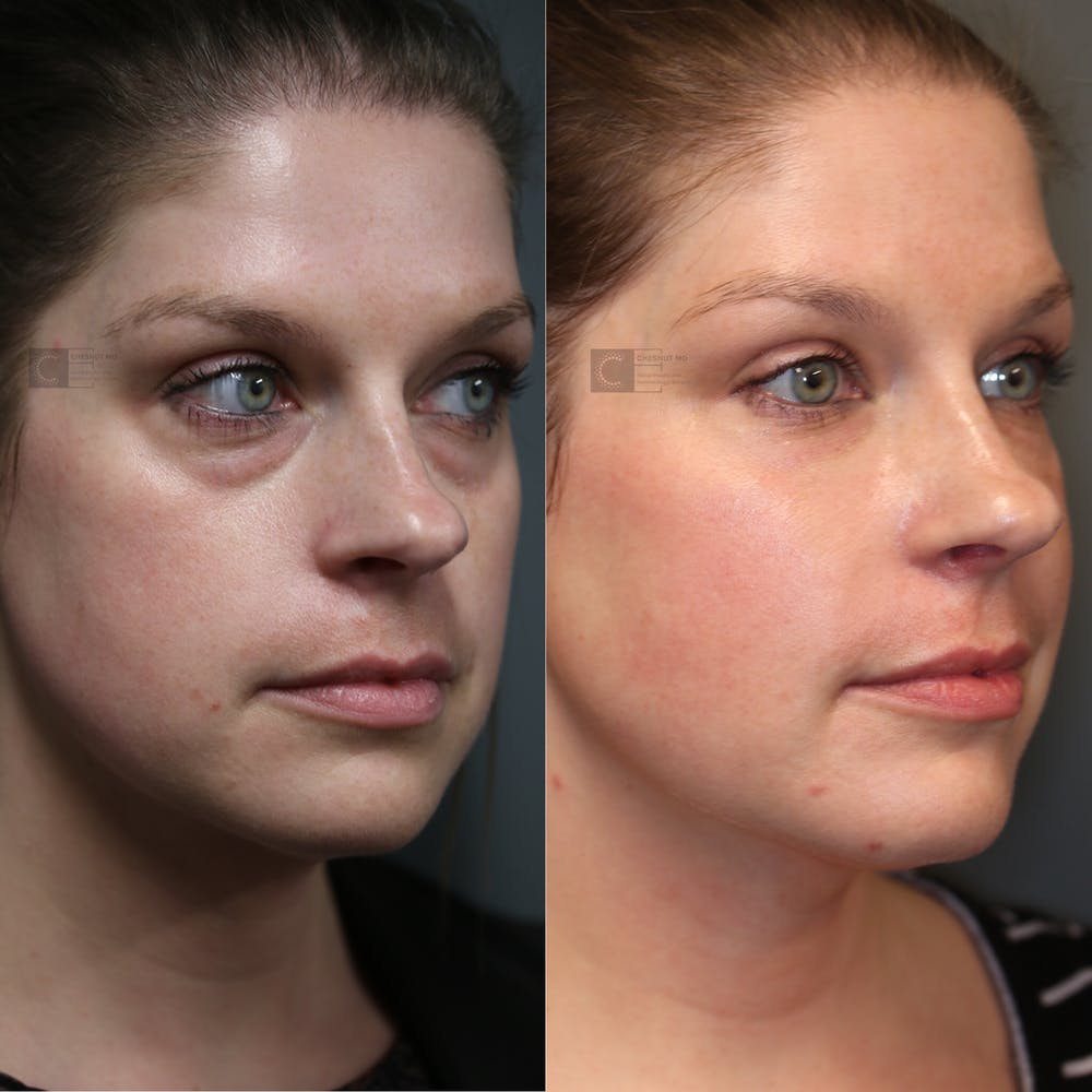 EnigmaLift - Eye Bag Removal Gallery - Patient 41308928 - Image 1