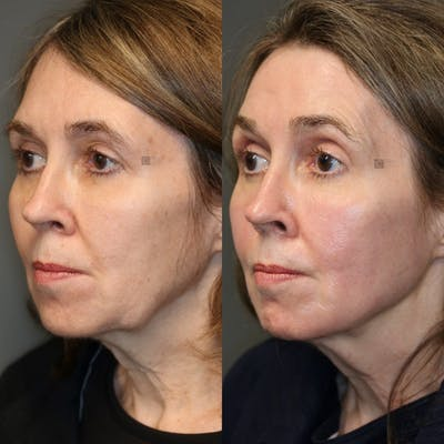 Structural Jawline Contouring Gallery - Patient 41308964 - Image 1