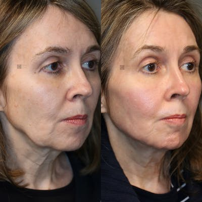 Structural Jawline Contouring Gallery - Patient 41308964 - Image 2