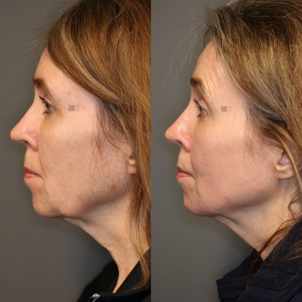Structural Jawline Contouring Gallery - Patient 41308964 - Image 3