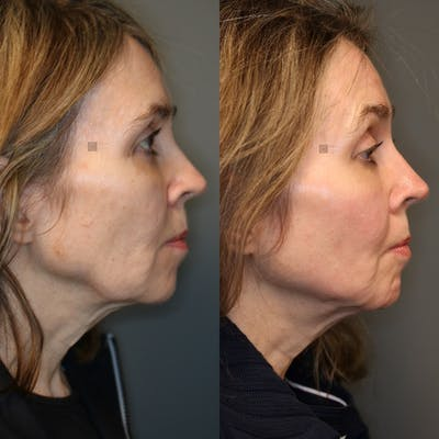 Structural Jawline Contouring Gallery - Patient 41308964 - Image 4