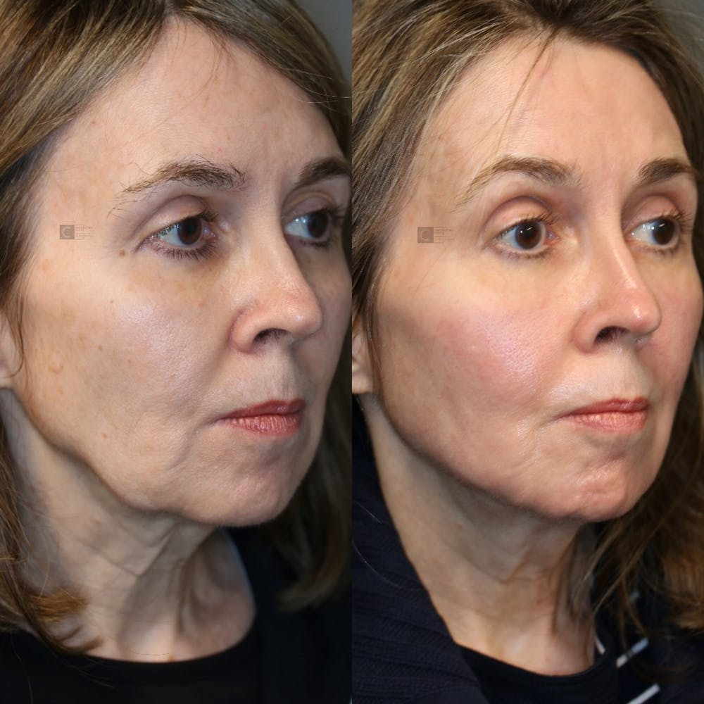 Midst Lift - Non-Surgical Facelift Gallery - Patient 41308981 - Image 2