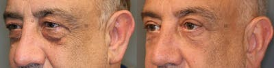 EnigmaLift - Eye Bag Removal Gallery - Patient 41309154 - Image 2
