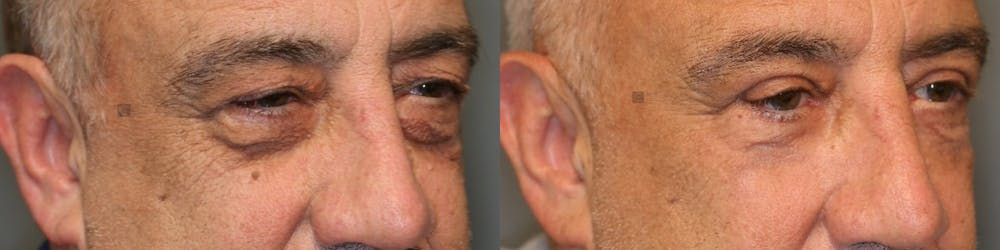 EnigmaLift - Eye Bag Removal Gallery - Patient 41309154 - Image 4