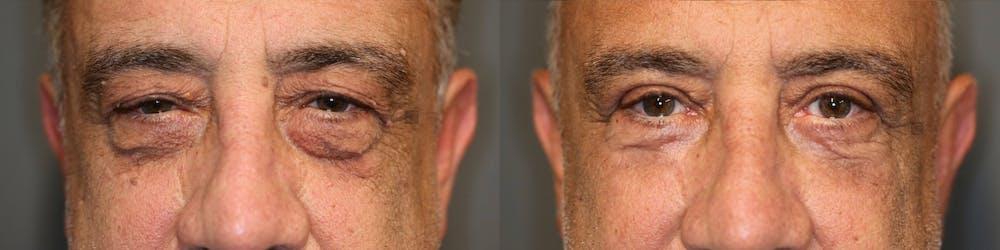 Brow Lift Gallery - Patient 41309175 - Image 1