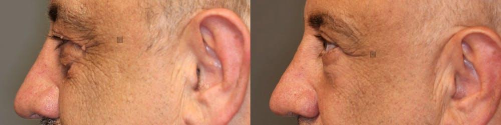 Laser Resurfacing Gallery - Patient 41309524 - Image 3