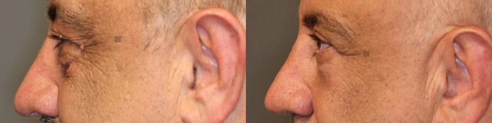 EnigmaLift - Upper Eyelids Gallery - Patient 41310082 - Image 3