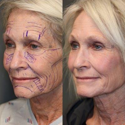 Facial Fat Transfer Gallery - Patient 41311154 - Image 1