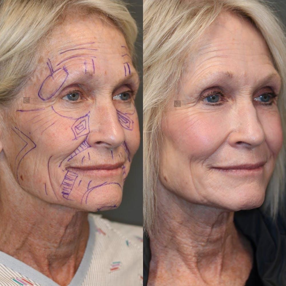 Facial Fat Transfer Gallery - Patient 41311154 - Image 2
