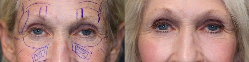 Facial Fat Transfer Gallery - Patient 41311154 - Image 3