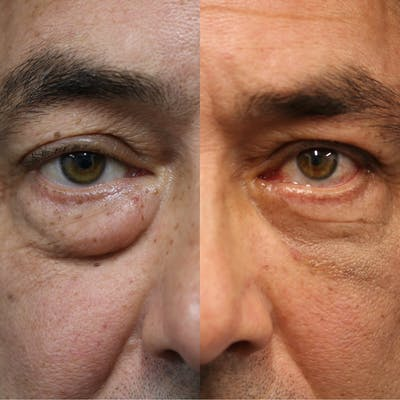 EnigmaLift - Eye Bag Removal Gallery - Patient 41311176 - Image 1