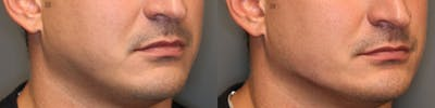 Structural Jawline Contouring Gallery - Patient 41311212 - Image 1