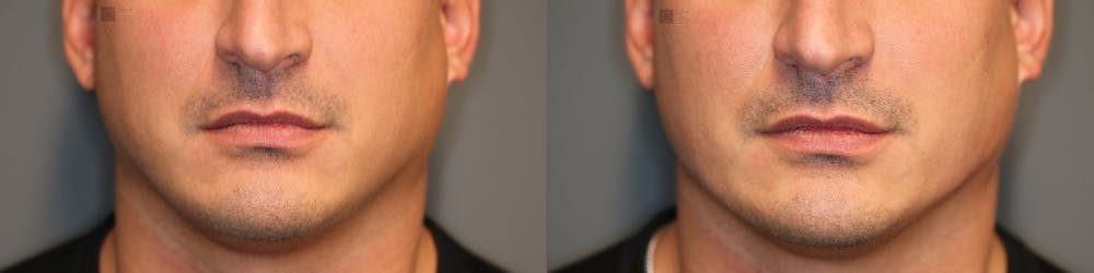 Structural Jawline Contouring Gallery - Patient 41311212 - Image 2