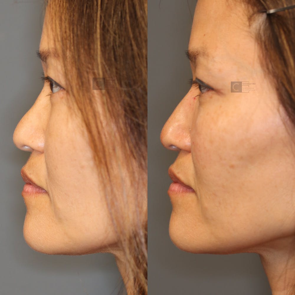 Non-Surgical Rhinoplasty Gallery - Patient 41311226 - Image 1