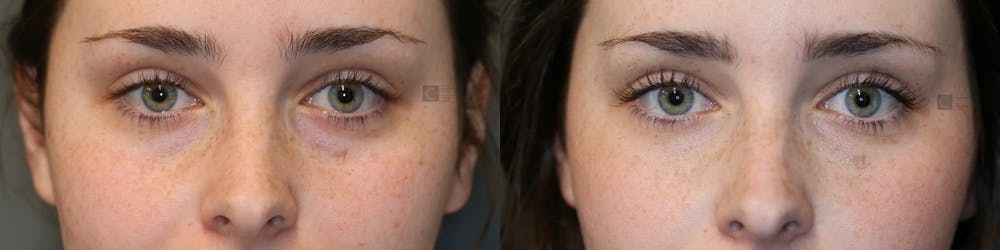 EnigmaLift - Eye Bag Removal Gallery - Patient 41311280 - Image 1