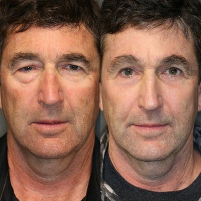 EnigmaLift - Eye Bag Removal Gallery - Patient 41311295 - Image 2