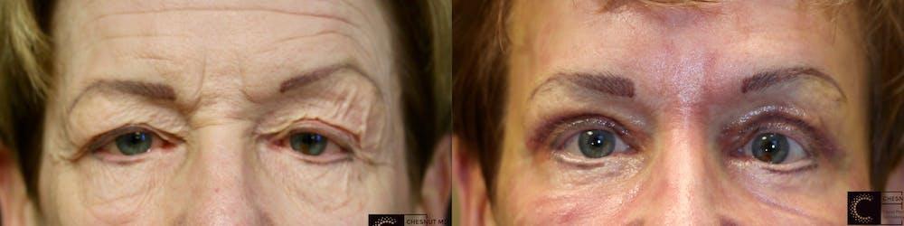 Brow Lift Gallery - Patient 41313842 - Image 1