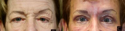 EnigmaLift - Eye Bag Removal Gallery - Patient 41313846 - Image 1