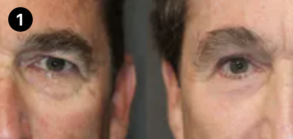 brow lift before and after - 1