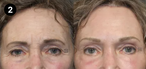 brow lift before and after - 2