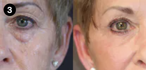 brow lift before and after - 3