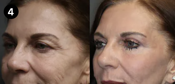 brow lift before and after - 4