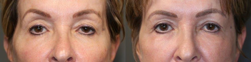 Facial Fat Transfer Gallery - Patient 57951213 - Image 1