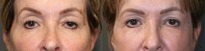 EnigmaLift - Upper Eyelids Gallery - Patient 57951204 - Image 1