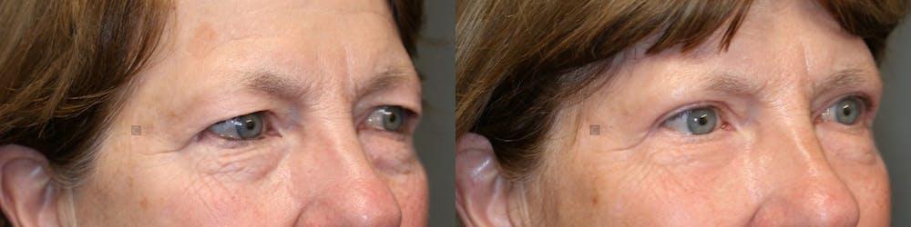 Laser Resurfacing Gallery - Patient 57951488 - Image 1