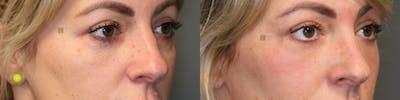 Laser Resurfacing Gallery - Patient 57956881 - Image 1