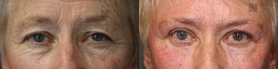 Laser Resurfacing Gallery - Patient 57956931 - Image 1