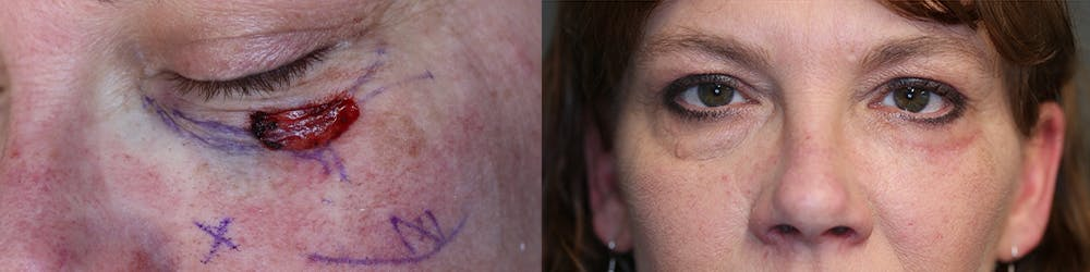 MOHS Gallery - Patient 63017756 - Image 1