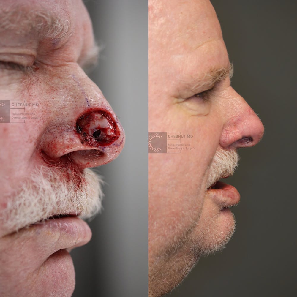 MOHS Gallery - Patient 63017759 - Image 1